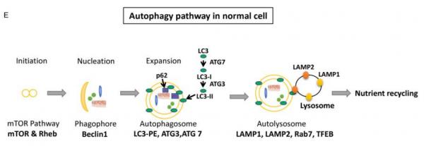 Hepatology:酒精性肝病中miR-155参与自噬和溶酶体功能紊乱并促进外泌体产生