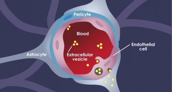 ACS Nano:乳腺癌细胞如何利用外泌体实现向大脑的肿瘤转移?