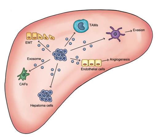 中国医科大学综述:外泌体在肝癌发生中的作用和诊断治疗潜力