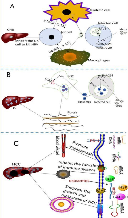 首都医科大学综述:外泌体在肝细胞癌发生和治疗中的意义