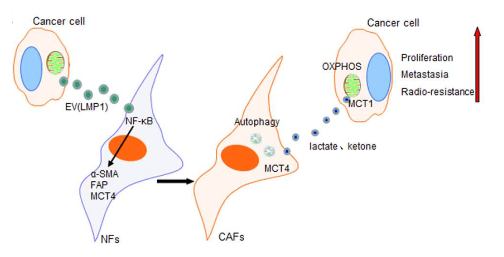 中南大学湘雅医院:细胞外囊泡包裹的LMP1激活成纤维细胞并改变肿瘤代谢促进鼻咽癌进展