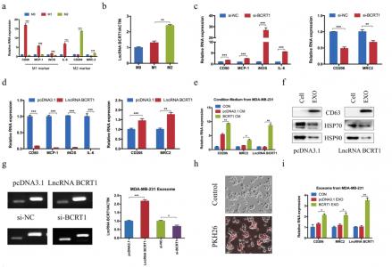 山东大学齐鲁医院:LncRNA BCRT1通过靶向miR-1303、并经外泌体诱导巨噬细胞极化促进乳腺癌进展