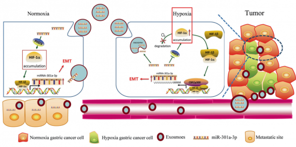 上海交通大学医学院:缺氧胃癌细胞来源的外泌体通过miR-301a-3p/PHD3/HIF-1α正反馈回路促进肿瘤进展和转移