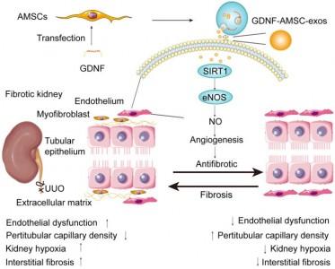 徐州医科大学:GDNF修饰的间充质干细胞衍生的外泌体改善了肾小管周围毛细血管丢失现象