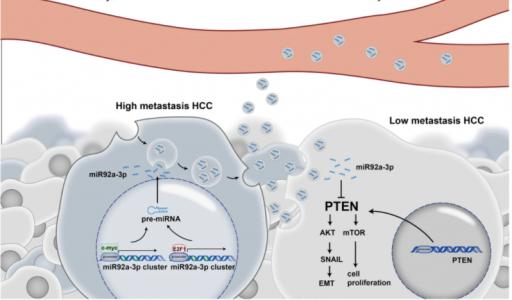 浙江大学医学院:高转移性肝癌细胞衍生的外泌体miR-92a-3p通过调节PTEN/Akt途径促进低转移肝癌细胞的EMT进程