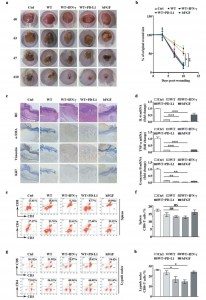 JEV:外泌体PD-L1作为促进伤口愈合的免疫抑制剂