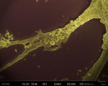 大型制药公司进军外泌体领域,用于药物递送 | Nature Biotechnology