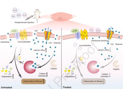 【Molecular Therapy】天津医科尹海芳教授组:外泌体介导DMD小鼠模型的肌肉功能改善