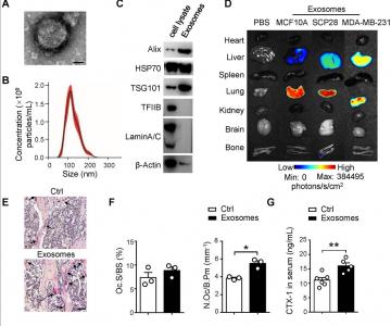 【Theranostics】乳腺癌外泌体帮助形成转移前微环境并促进肿瘤细胞骨转移