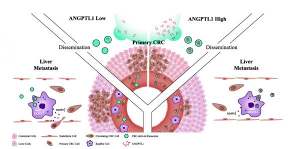 浙江大学医学院:外泌体ANGPTL1通过调节Kupffer细胞分泌模式并抑制血管渗透性来减轻结肠直肠癌肝转移