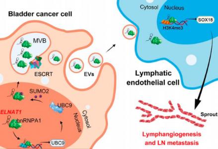 中山大学孙逸仙纪念医院 JCI:SUMO修饰在膀胱癌淋巴转移中的作用