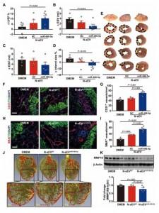 Science子刊:含有miR-486-5p的小细胞外囊泡促进小鼠和非人类灵长类动物心肌梗死后的血管生成