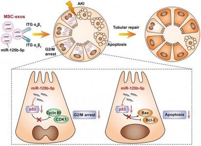东南大学:间充质干细胞来源的外泌体miR-125b-5p在急性肾损伤中促进肾小管修复