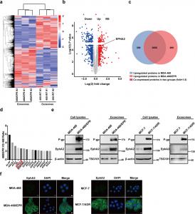 天津医科大学:耐药乳腺癌细胞来源的EphA2通过EphA2-Ephrin A1信号促进肿瘤转移