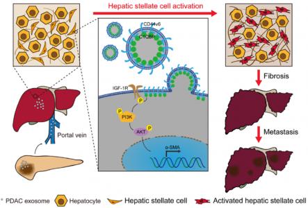 【Gut】上交张艺凡/李青峰、复旦傅德良揭示:外泌体CD44v6/C1QBP促进胰腺癌肝转移的新机制