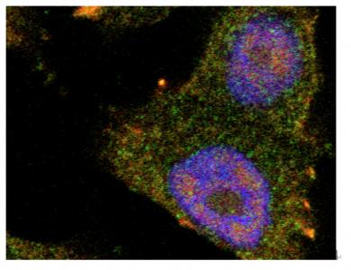 hnRNPK 介导的外泌体分泌新机制为预防前列腺癌转移带来新希望