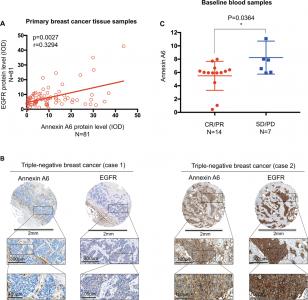 复旦大学肿瘤医院:外泌体ANXA6抑制EGFR泛素化降解诱导三阴性乳腺癌的吉西他滨耐药