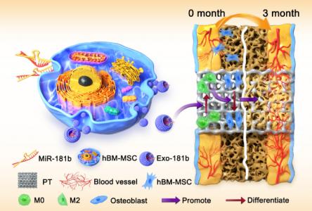 海军军医大学:工程化的外泌体miR-181b通过调节巨噬细胞极化改善骨整合