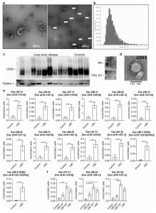 Acta Neuropathologica:路易体病中细胞外囊泡介导α-突触核蛋白传播